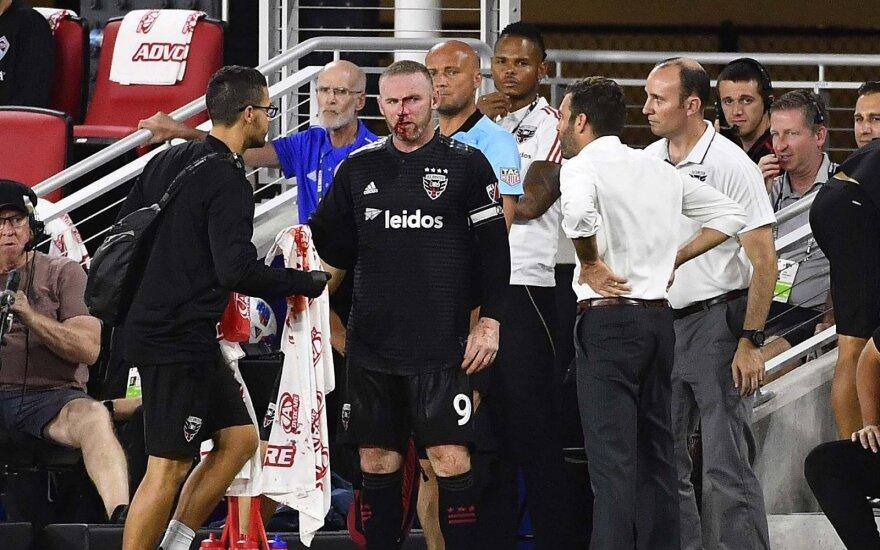 JAV debiutinį įvartį įmušusiam Rooney lūžo nosis