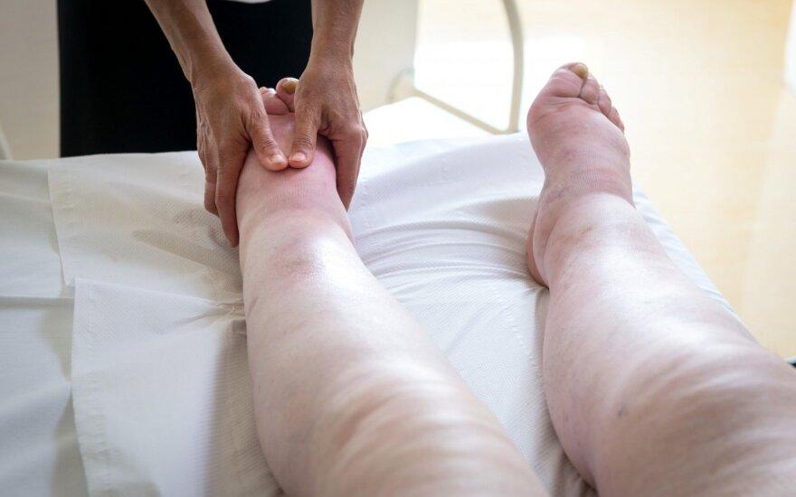 Ištinusios kojos