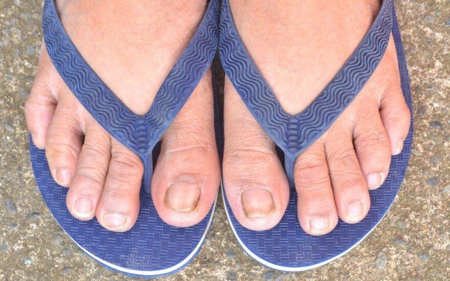 Nagų grybas – vartai infekcijai patekti