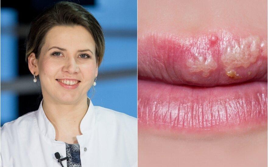 Inga Kisielienė