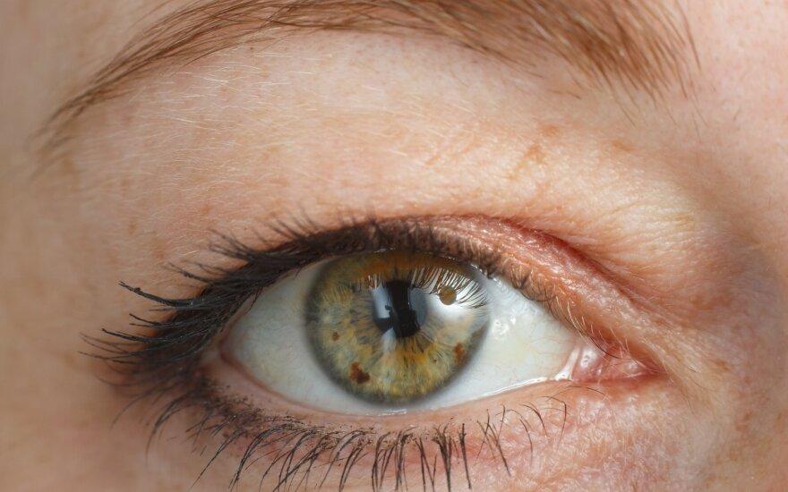 Užkritęs akių vokas