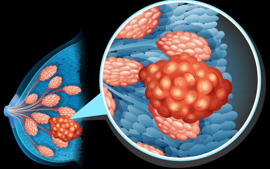 Krūties vėžiu lietuvės serga vis dažniau: onkologės įvardijo, kurioms moterims susirgti – didžiausia tikimybė