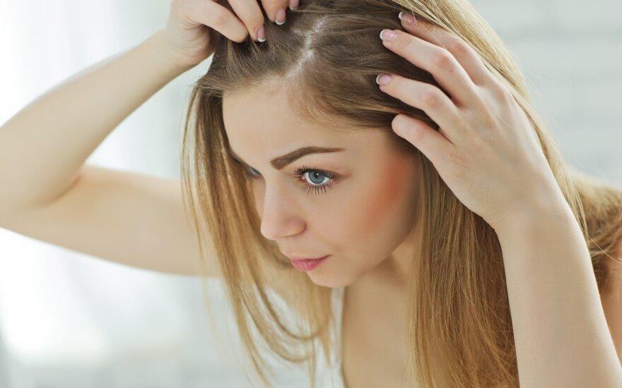 Slenka ar retėja plaukai? Tai nuosprendis visam gyvenimui ar valdoma būklė?