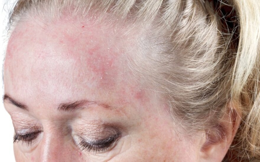 Atopinio dermatito gydyme Lietuva atsilieka: Europoje naudojami vaistai lietuviams kol kas neprieinami