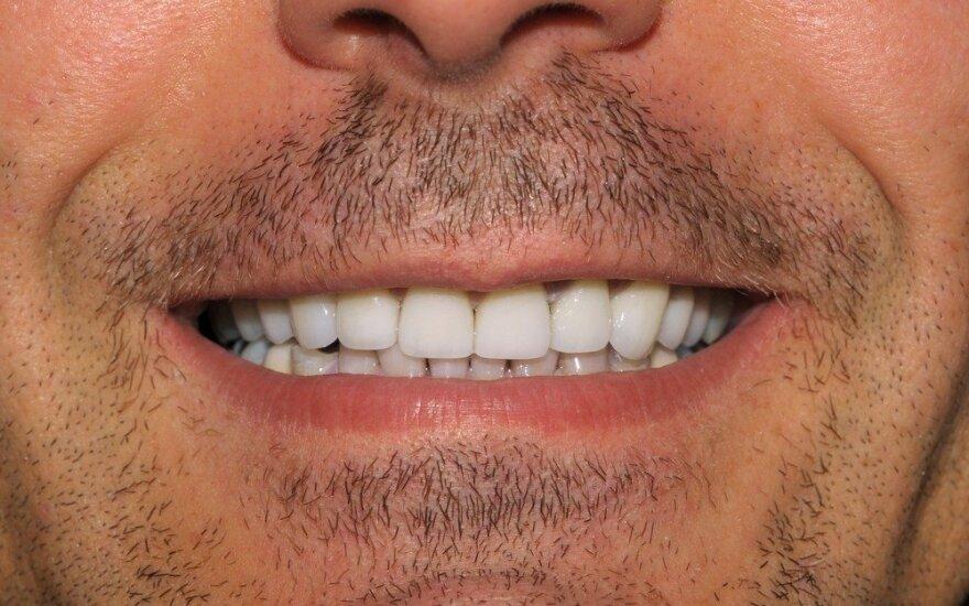 Mikroįtrūkiai ant dantų emalio. Kas juos sukelia?