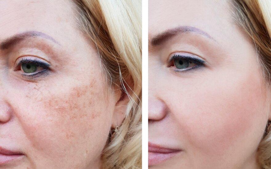 Tamsios dėmės odoje: dėl ko jos atsiranda ir kaip jas pašalinti