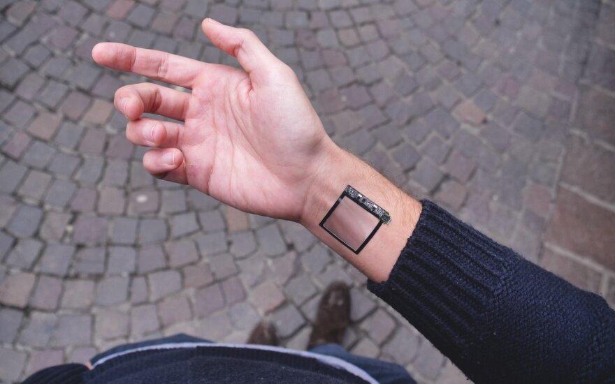Po avarijos moteris nepasidavė: mediciniai implantai leidžia atidaryti duris, o pirštų galiukuose – magnetai