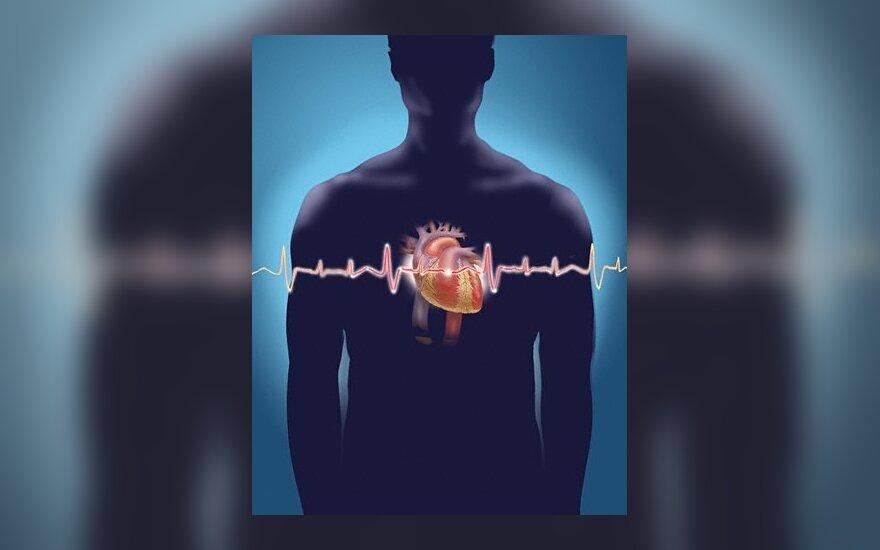Per karščius įspėjama apie miokardo infarkto pavojų