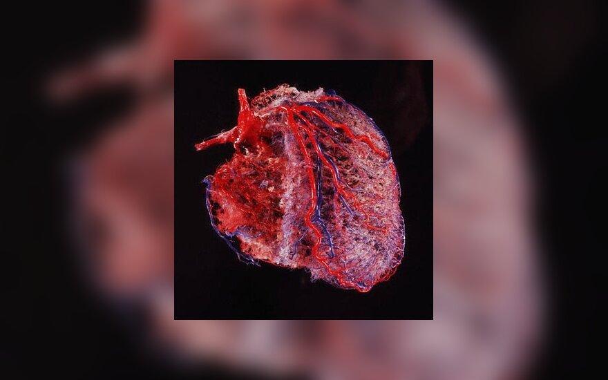 hipertenzijos gydymas jaunystėje)