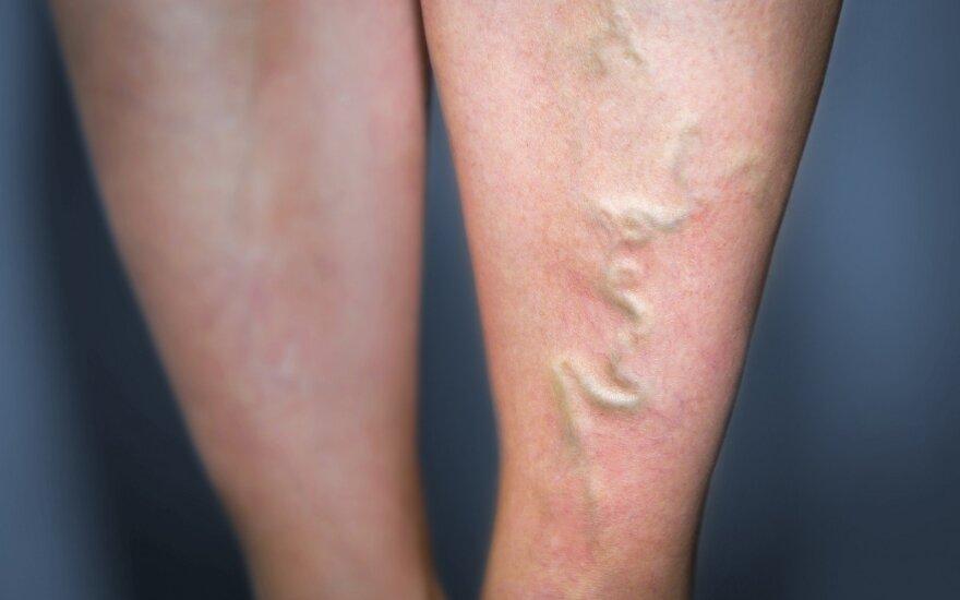 Kaip užkirsti kelią kojų venų ligoms