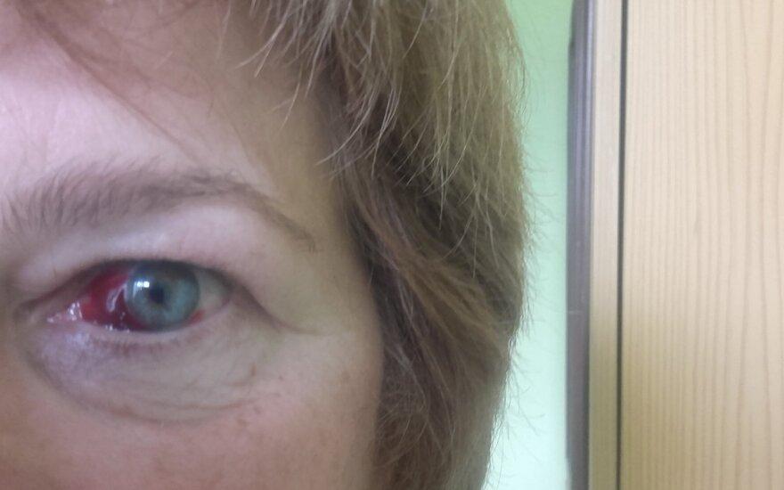 Po apsilankymo pas gydytoją – slogus vaizdas veidrodyje