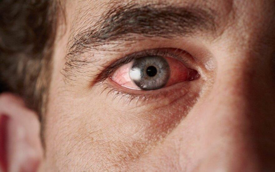 Nekaltas akies paraudimas gali palikti pėdsakų visam gyvenimui