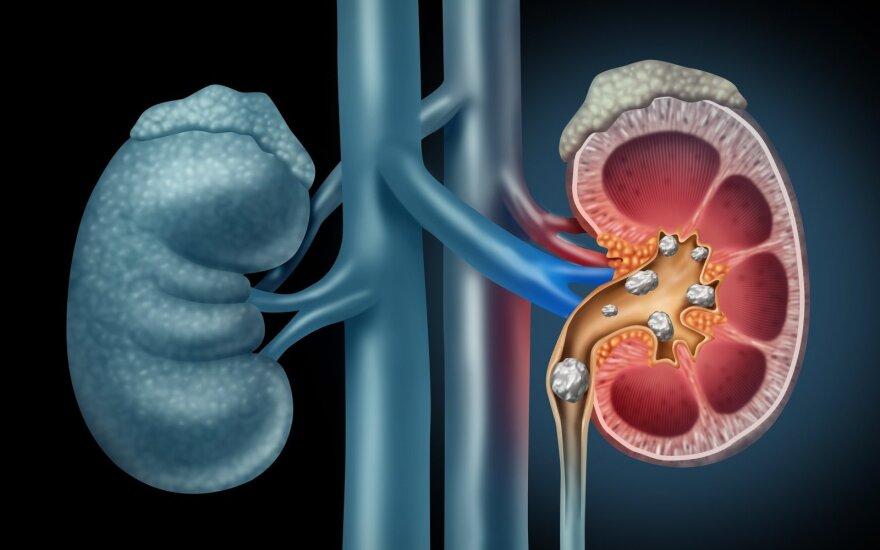 5 gydytojos patarimai, kaip išsaugoti sveikus inkstus