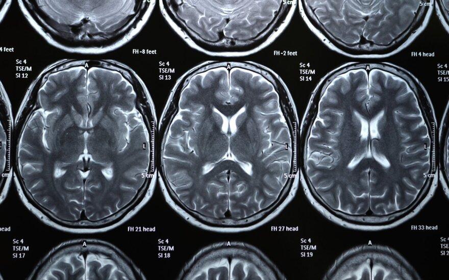 Persirgus COVID-19 stebimi pokyčiai smegenyse. Shutterstock/NIAID nuotr.