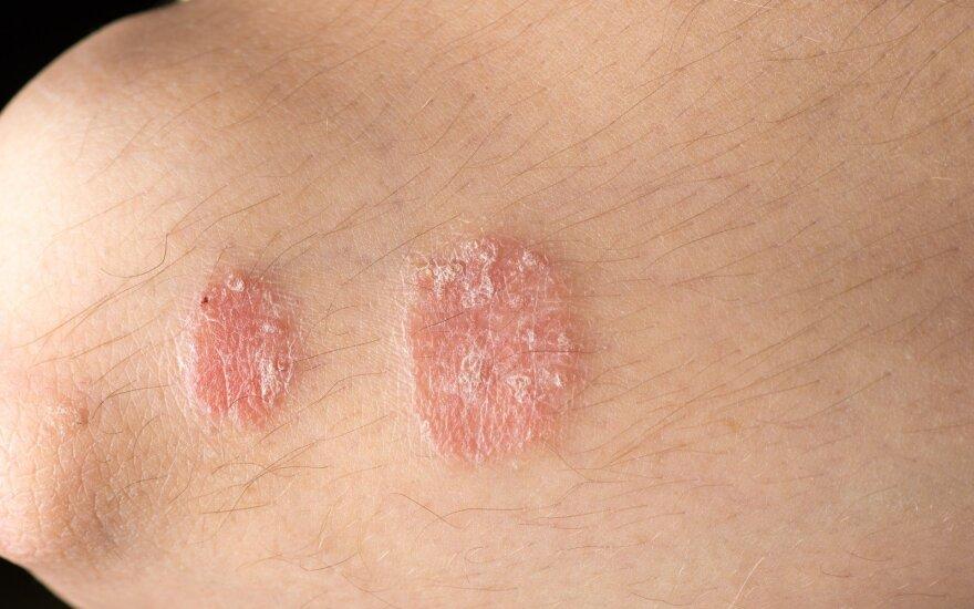 Neišgydoma odos liga gali atsirasti ir dėl nesuderintų vaistų