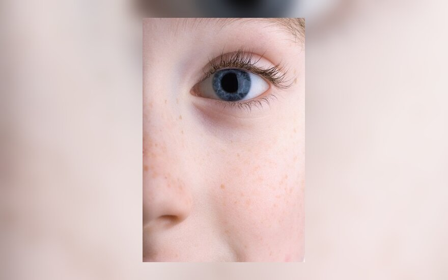 Berniukui akį išdūręs vyras kalės 5 metus
