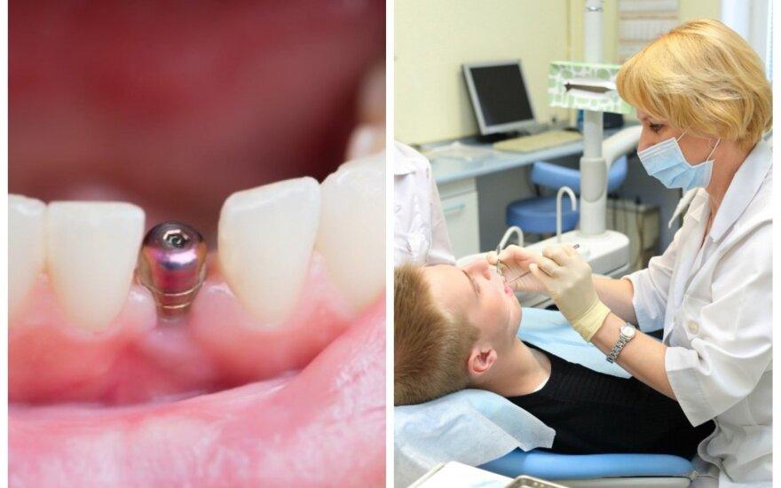 Dantų implantas