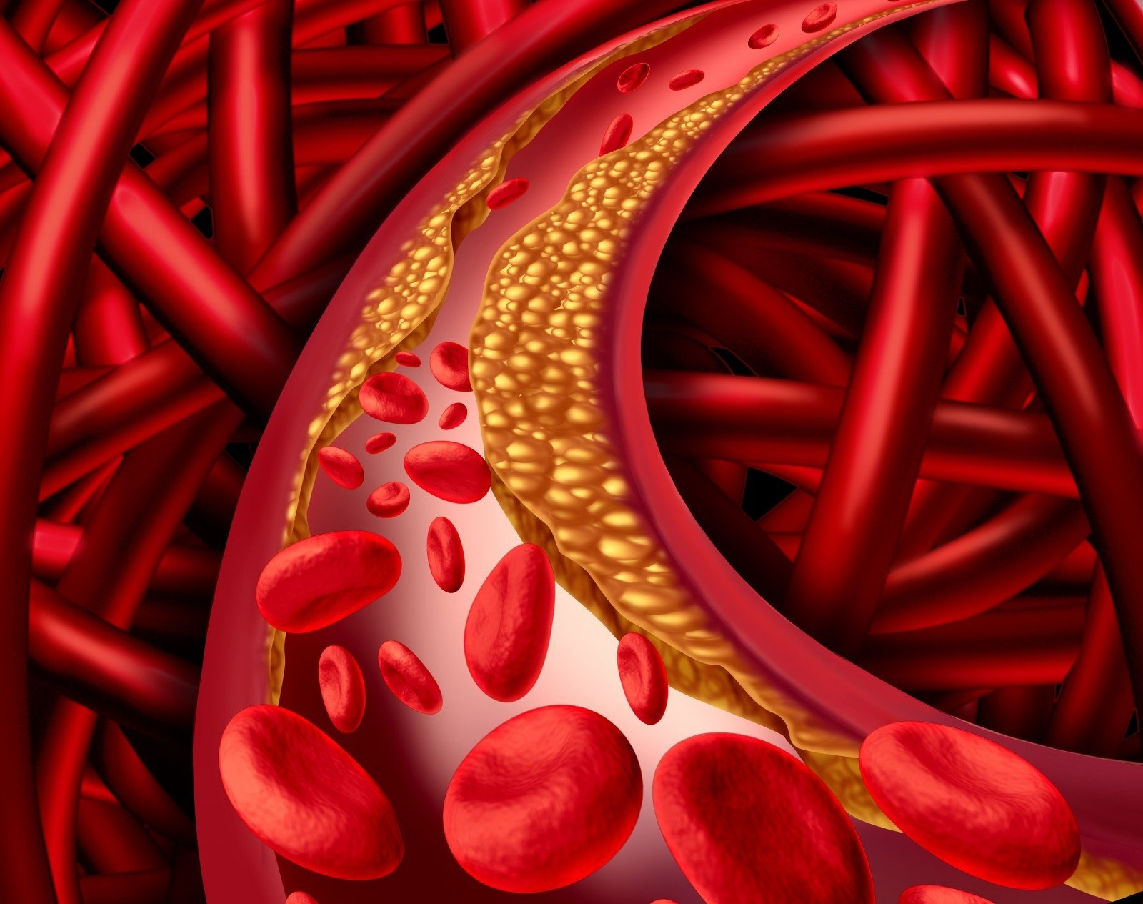 Mityba ir cholesterolis - REVÙ CLINIC