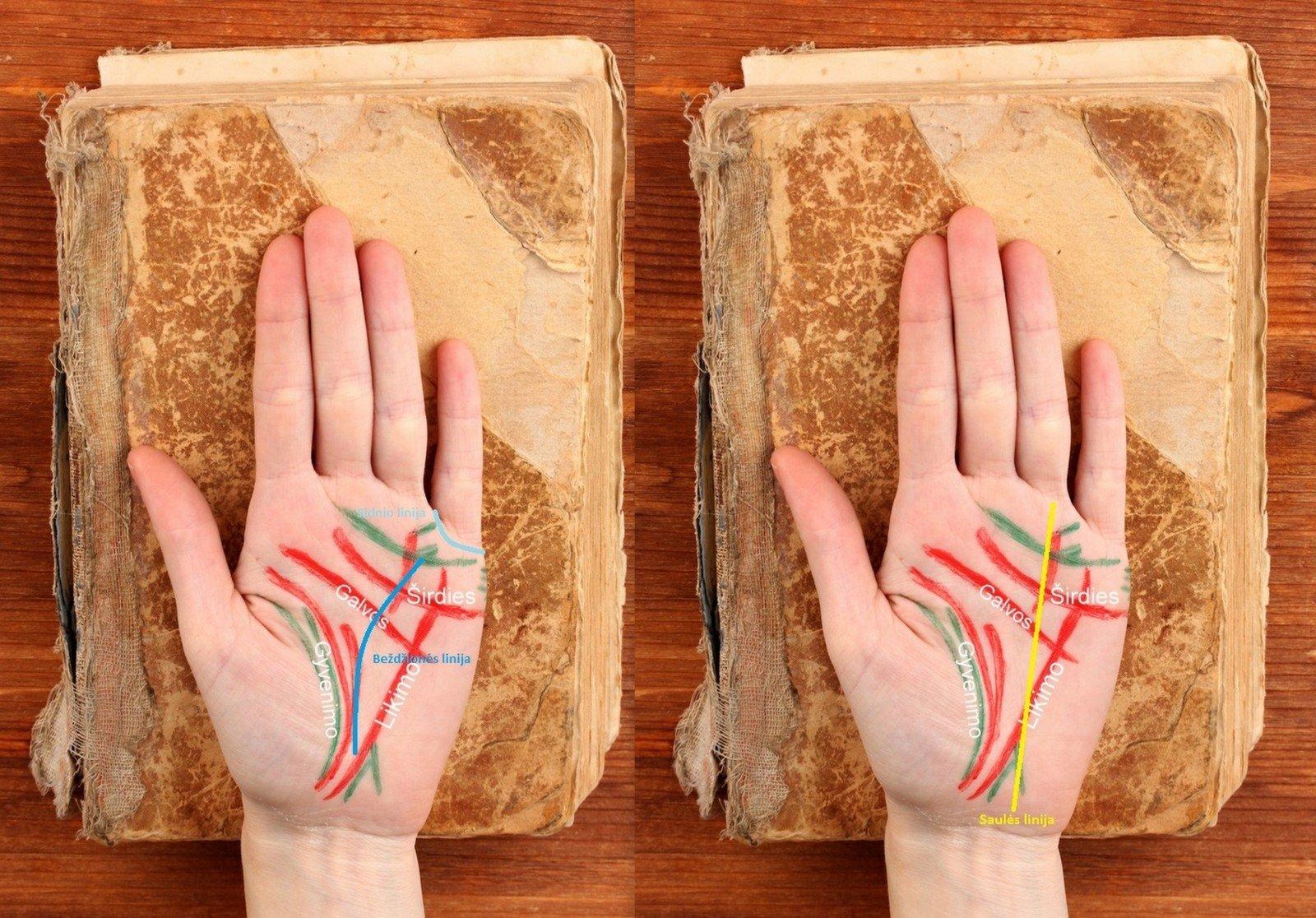 4 galvos širdies rankos ir sveikata simpatoadrenalinė hipertenzija