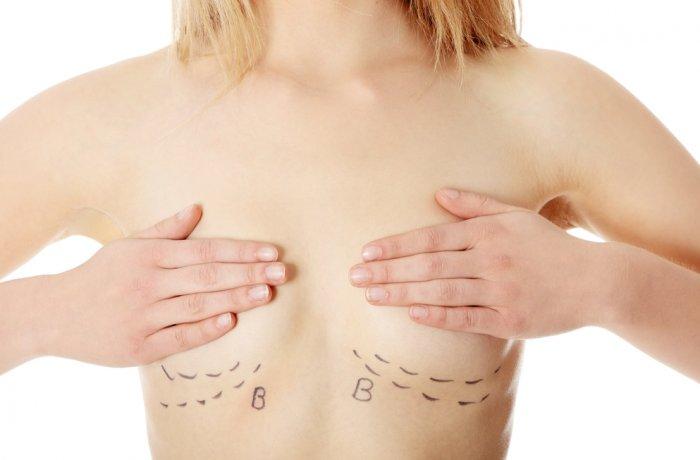Контурная маммопластика