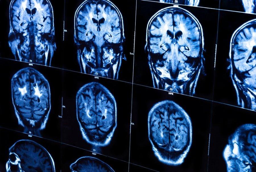Kai vaiko smegenų sukrėtimas, temperatūra pakyla: priežastys ir poveikis