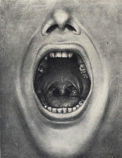 H. Cottono pacientas ištrauktais dantimis