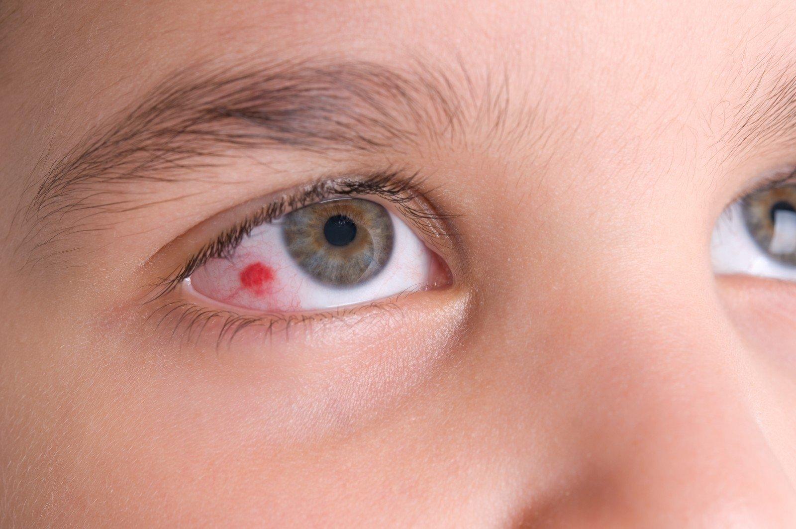 hipertenzija akių edema)