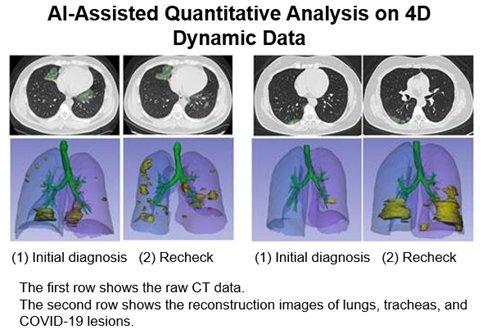 Kovojant su koronavirusu pasitelkiami dirbtinio intelekto sprendimai: padeda analizuoti plaučių nuotraukas