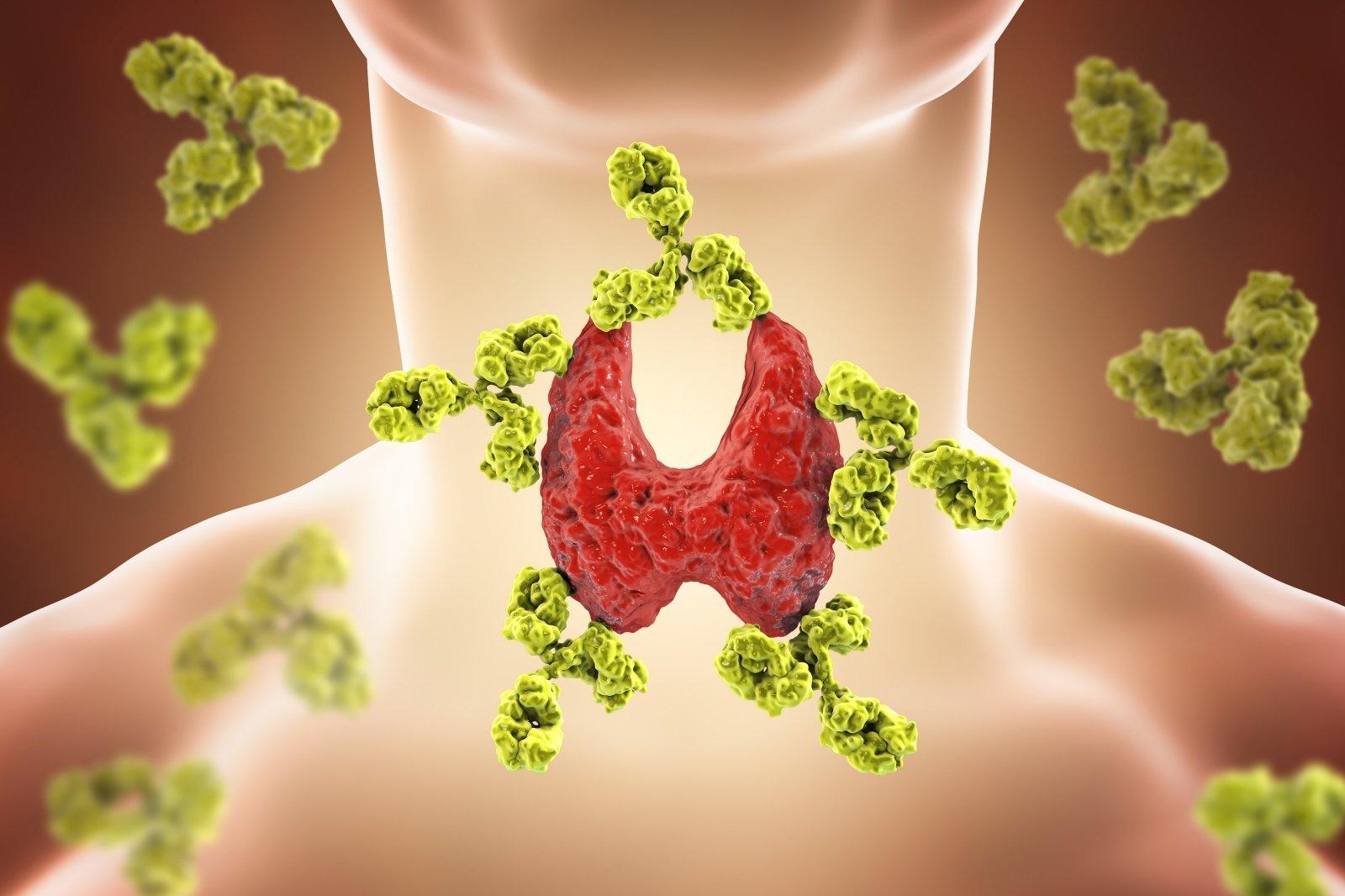 Kaip geriausia mesti svorį, kai tam priešinasi skydliaukės hormonai - DELFI Gyvenimas