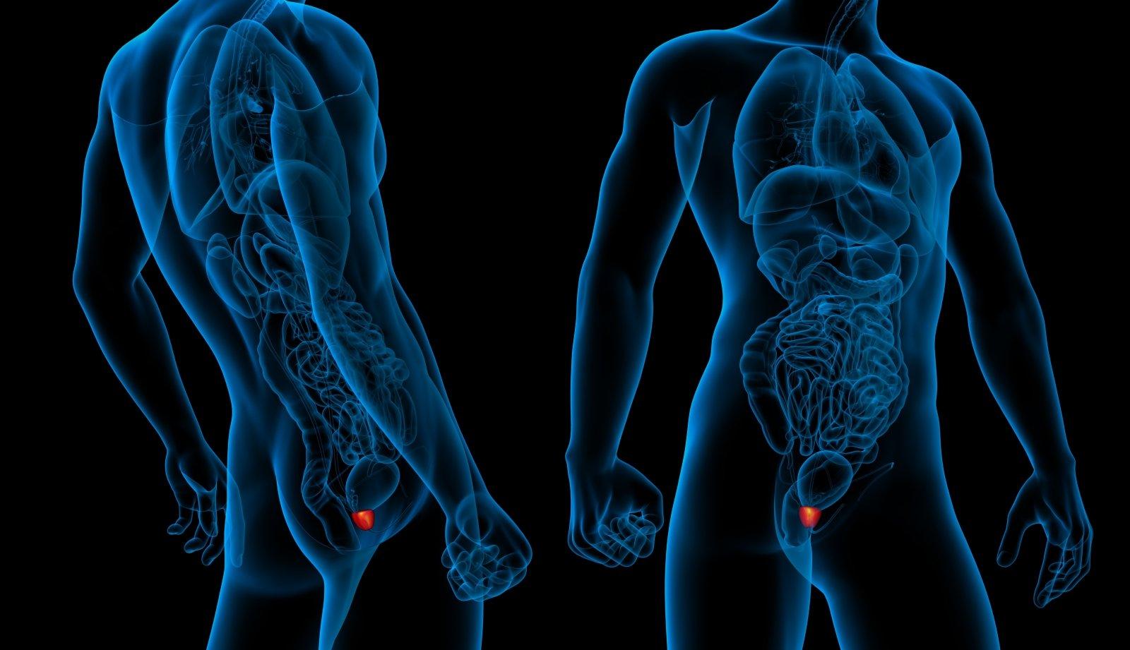 Prostatiled gyertyák Vélemények Prostatitis