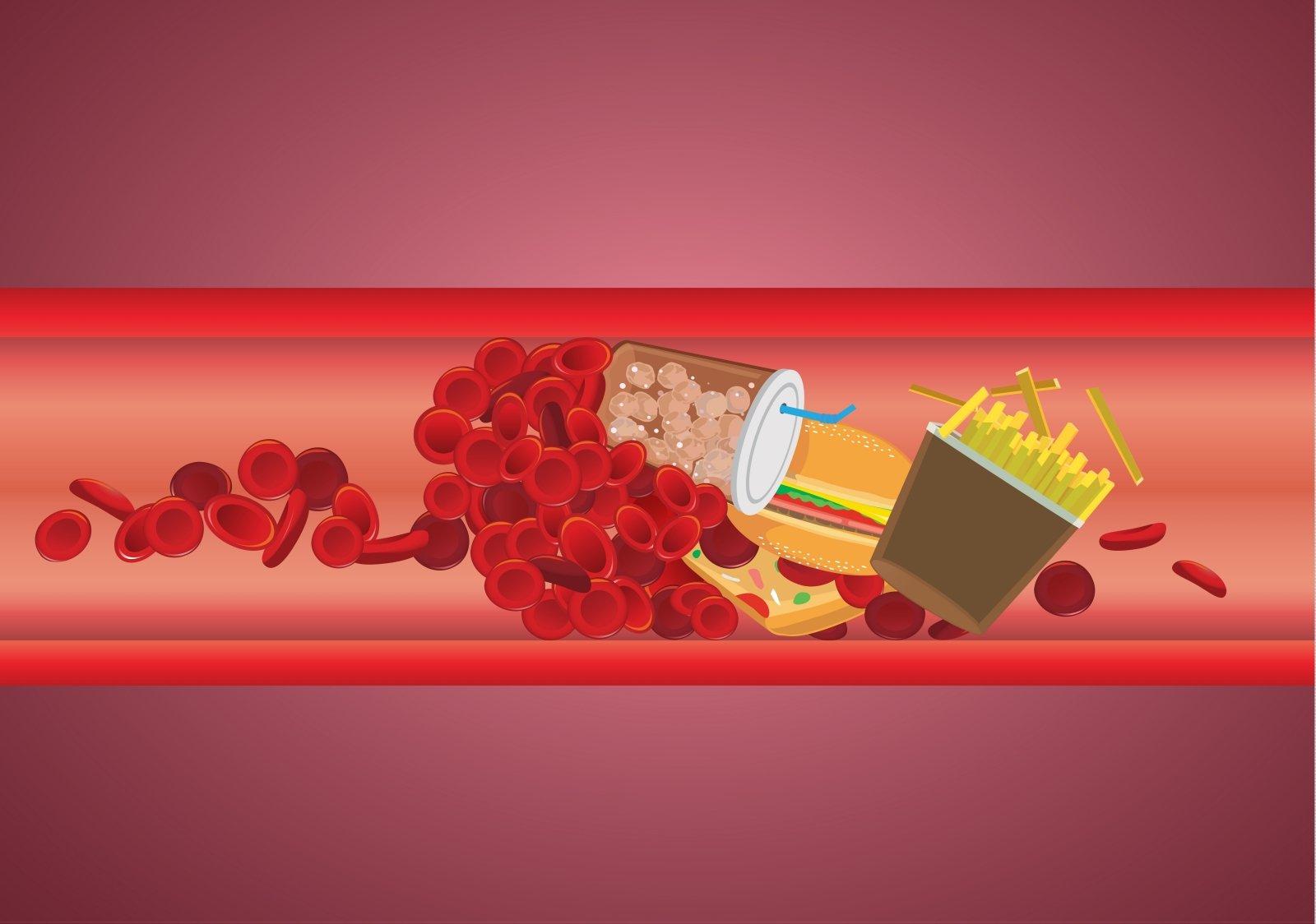 maistiniai riebalai cholesterolis ir širdies sveikata