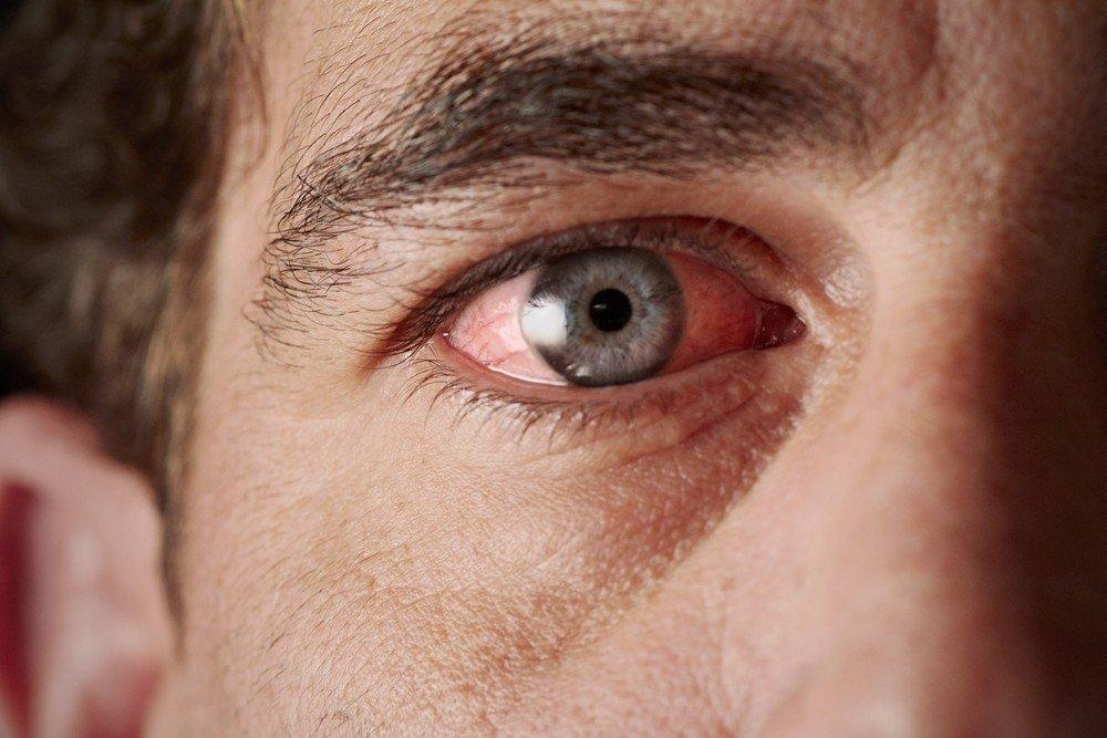 Blogai kontroliuojamo kraujo spaudimo poveikis akims
